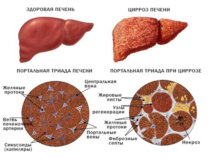 здоровая и пораженная циррозом печень